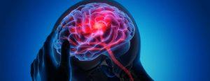 apneia-obstrutiva-do-sono-e-avc-fator-de-risco-para-avc